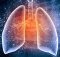 Jangan Sepelekan Tuberkulosis