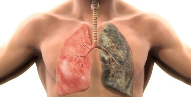 Sudahkah Kamu Tahu Faktor Risiko Terbesar Dari Kanker Paru