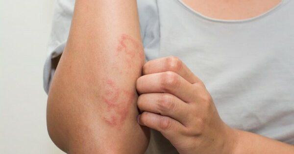 Apakah Penyebab Dari Alergi?
