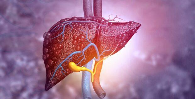 Ketahui Jenis Hepatitis Untuk Penanganan Yang Tepat