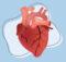 Penyakit Jantung Iskemik Berbahayakah?