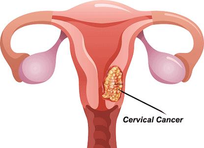 Ketahui Bahaya Kanker Serviks