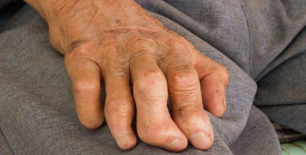 Ketahui Bahaya Penyakit Kusta Atau Lepra