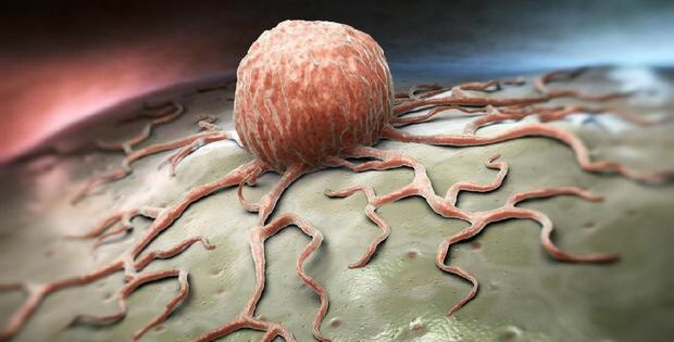 Kenali Gejala Dari Tumor