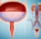 Kenali Apa Saja Penyakit Urologi