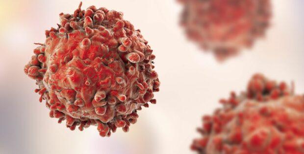 Kamu Harus Tahu Perbedaan Kanker Dan Tumor