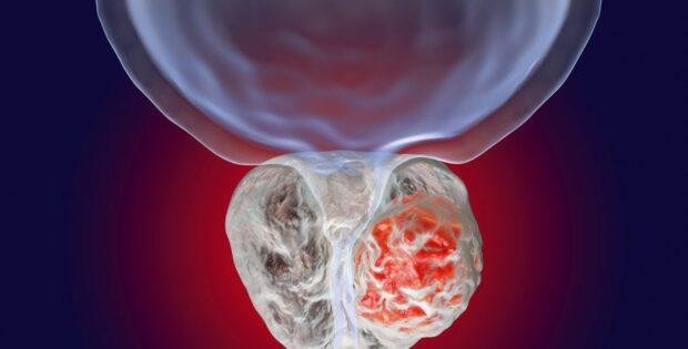 Kenali Fungsi Prostat dan Cara Menjaganya